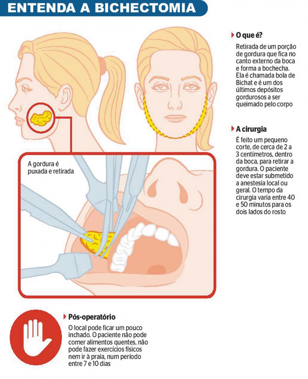 Tudo o que você queria saber sobre a Bichectomia
