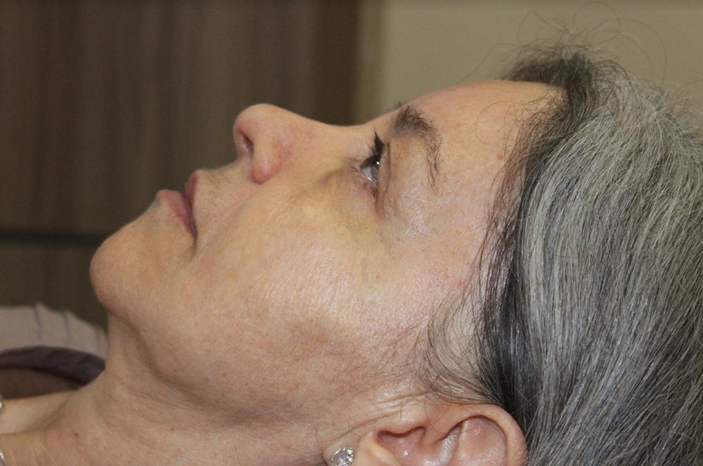 Rejuvenescimento facial na terceira idade